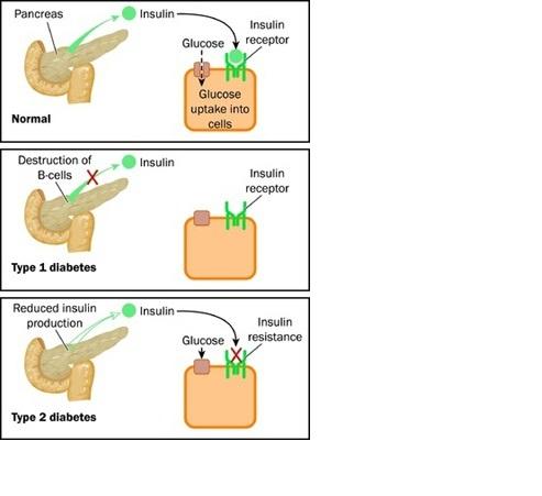 glicemia normală