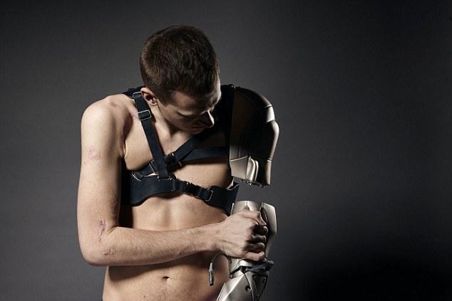 brațul bionic (3)