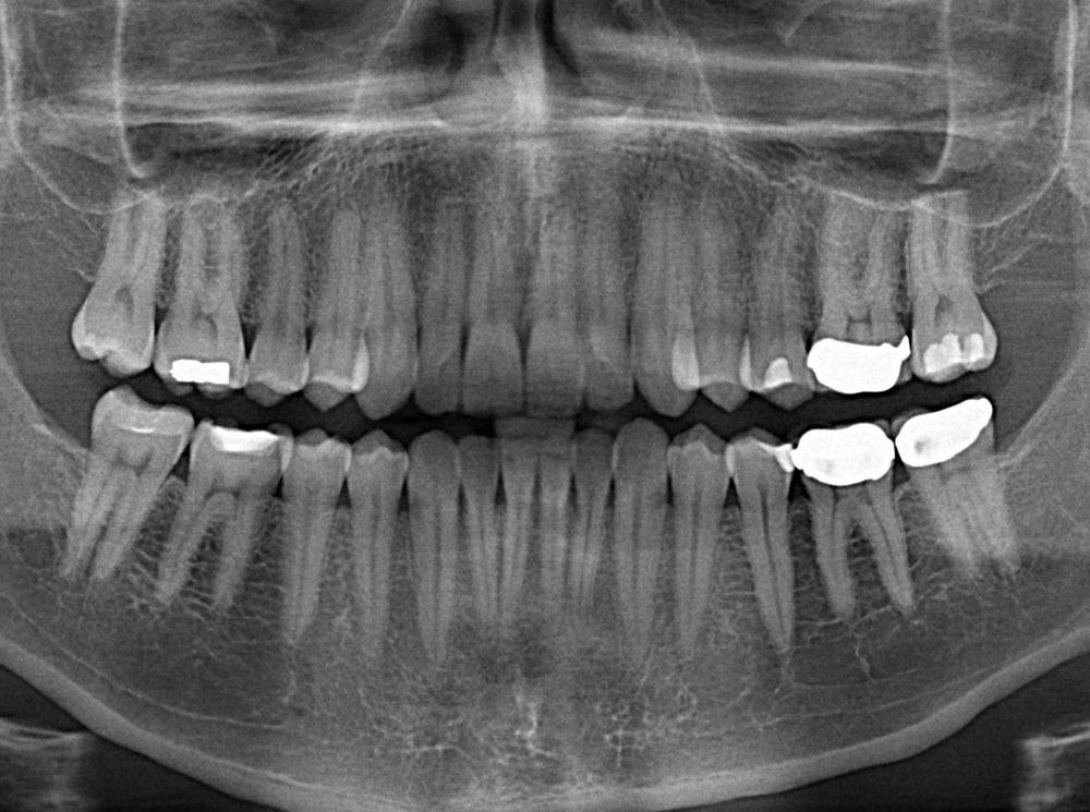 Radiografie dentară/ FOTO: Eric Schmuttenmaer