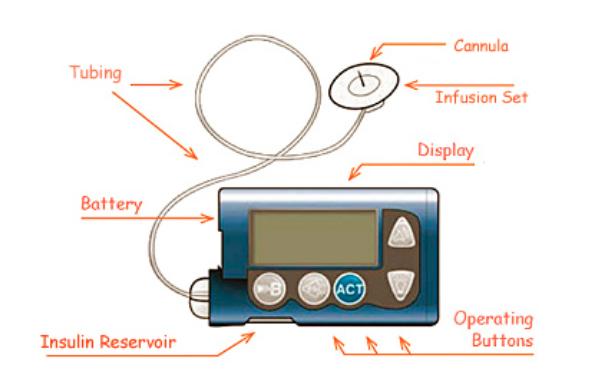 Componentele unei pompe de insulină.