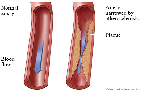 complicațiile diabetului-ateroscleroza