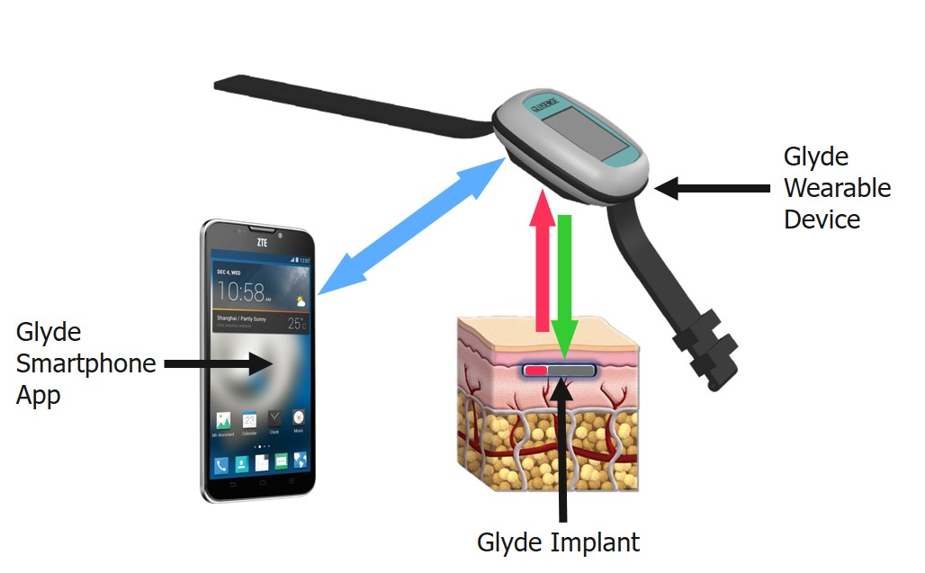 senzor glicemic implantabil glyde