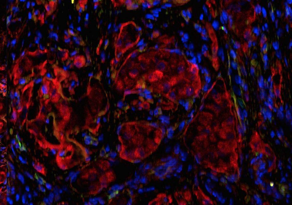 tratament revolutionar pentru diabet celule