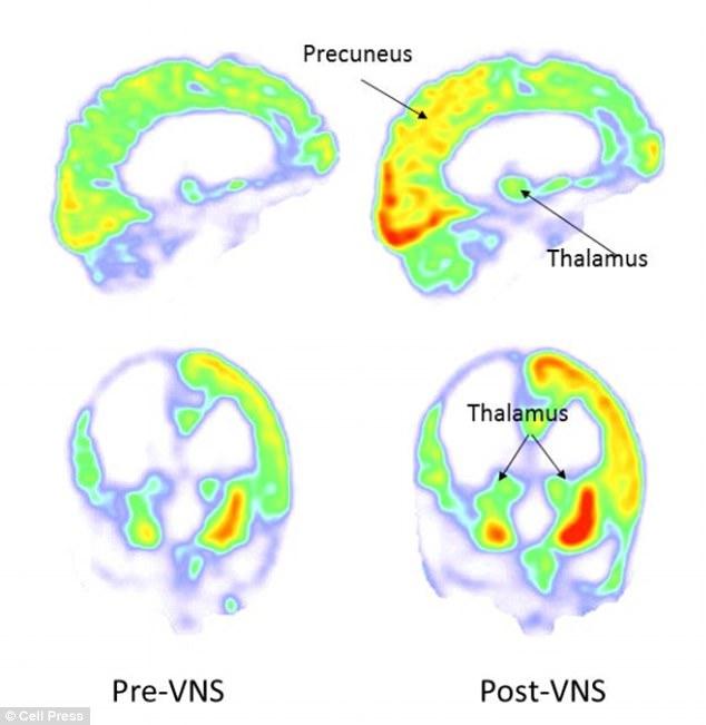 stimulator nervos creier