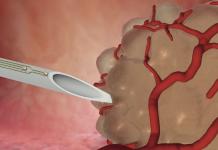 ac de biopsie