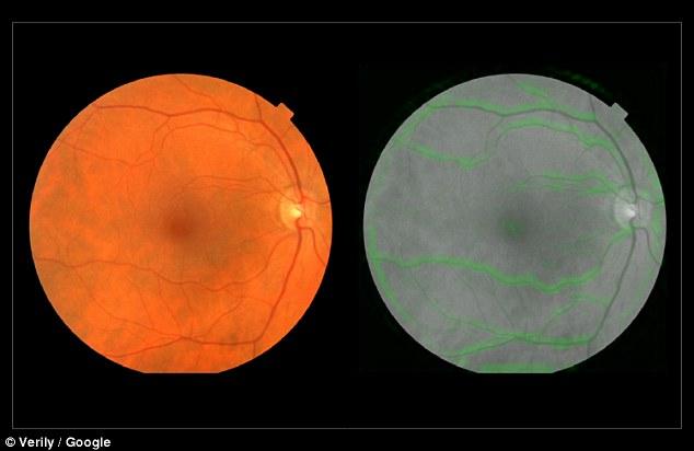 bolile de inimă test retina