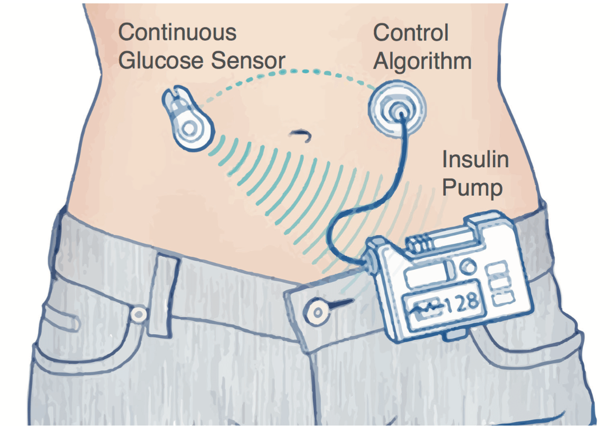 grafic pancreasul artificial