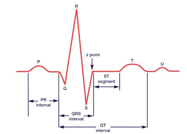 EKG unde
