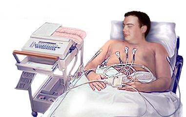 EKG electrozi
